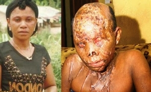 Married Man Jailed 10 Years For Bathing Lover With Acid